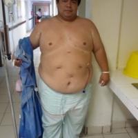 Endoscopia Gastrocirugia y OBESIDAD